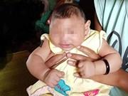 Vietnam confirms first Zika-tied birth defect case