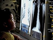 Malaysia worries over return of infectious diseases