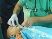 Free surgery for children with cleft lips, palates in central provinces